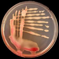 Ralstonia Solanacearum Race 3 Biovar 2 Causes Tropical