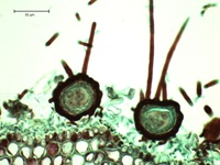 Figure 10.  Sexual ascospores are produced in sac-like asci enclosed in fruiting bodies (ascocarps).  Ascocarps of P. leucotricha contain a single ascus and have apical and basal appendages.  (Courtesy A. Baudoin from a Triarch Incorporated prepared slide).
