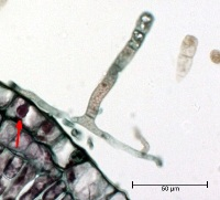 Figure 11.  Mycelium grows on the leaf surface but is able to penetrate the plant's epidermal cells and form a balloon-shaped haustorium (arrow), which absorbs nutrients and anchors the fungus.  (Courtesy A. Baudoin from a Triarch Incorporated prepared slide).