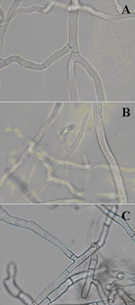 Figure 15. A) Sclerotinia homoeocarpa hyphae; note the presence of a septum. B) Pythium aphanidermatum hyphae with a noticeable lack of septa. C) Right- angled branching of Rhizoctonia solani hyphae; note the septum formed close to the branch origin (Courtesy T.W. Allen)