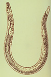 Figure 1. Illustration of adult female lesion nematode showing morphology. (Courtesy Union Carbide)