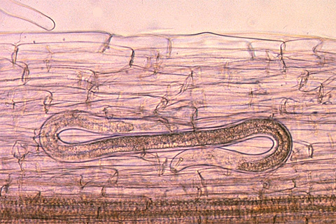 Lesion nematode inside root - medium magnification (Courtesy D. Wixted)