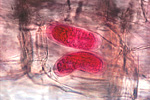 Figure 15. Lesion nematode eggs (stained red with acid fuchsin) laid within a plant root. (Courtesy J. D. Eisenback, NemaPix)