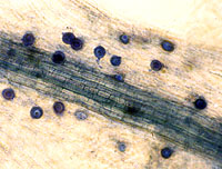 Figure 8. Aphanomyces euteiches oospores within pea root tissue. (University of Wisconsin-Madison Department of Plant Pathology
