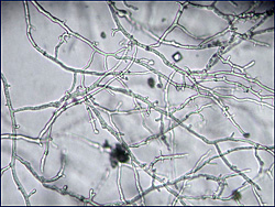 Figure 22. Typical hyphae of Phytophthora nicotianae. Note the absence of septations, irregular width, and presence of hyphal sw