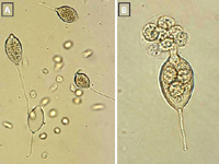 Figure 13. Sporangia and zoospores of Phytophthora capsici: (A) sporangia and zoospores in a culture plate; (B) a sporangium releasing zoospores. (Courtesy M. Babadoost)
