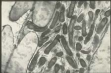 Figure 19a. Cells of Xylella fastidiosa within the xylem tissue of a pin oak petiole. (Courtesy J.R. Hartman)